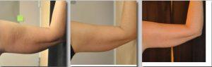 Tratament grasime/ piele flasca brate- VelaShape III- 5 sedinte