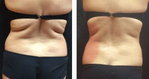 Tratament grasime spate-aripioare VelaShape III- 4 sedinte