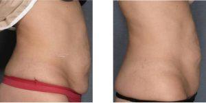 Tratament grasime si piele lasata abdomen- VelaShape III- 6 sedinte