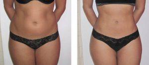 Tratament grasime abdomen- VelaShape III- 6 sedinte
