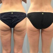VELASHAPE-3-before-and-after-2